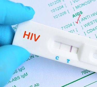HIV Rapid Testing Kit
